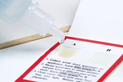 Bowel Cancer Tests
